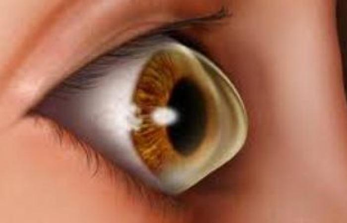 """5 علامات فى العينين تخبرك بنقص فيتامين """"د"""".. منهم الإحمرار وحساسية الضوء"""