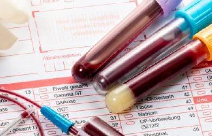 ما هو تحليل الهيموجلوبين سى في الدم ومتى يطلبه الطبيب؟