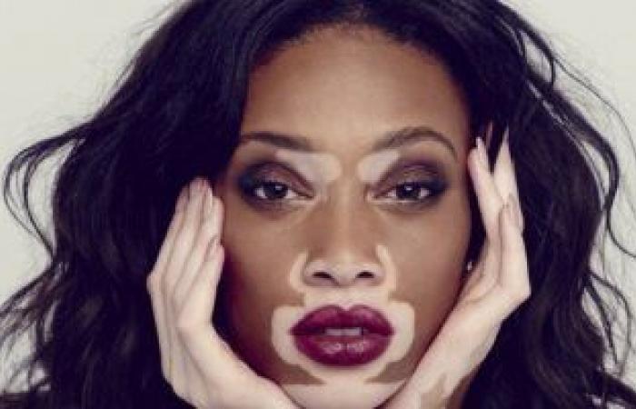 """4 علامات تظهر على وجهك تدل على نقص فيتامين """"ب 12"""" فى جسمك"""