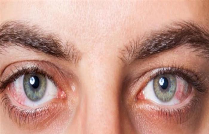 اصفرار الجلد وبياض العينين.. علامات تدل على التهاب الكبد