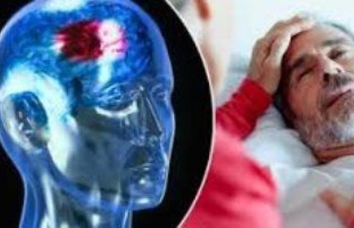 كيف تكتشف الإصابة بالسكتة الدماغية مبكرًا لإنقاذ حالة المريض